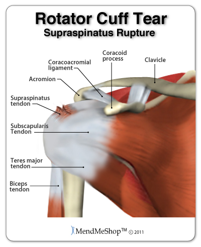 rotator-cuff-supraspinatus-tendon-tear